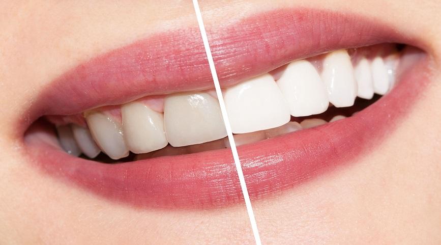 Cele mai bune solutii pentru albirea dentara